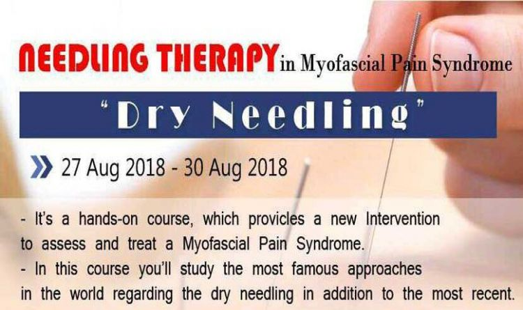 NEEDLING THERAPY in Myofascial  Pain Syndrome