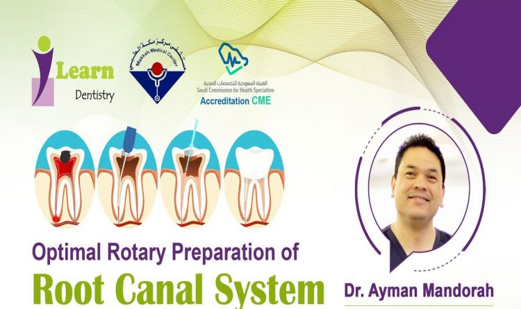 Optimal Rotary Preparation of Root Canal System
