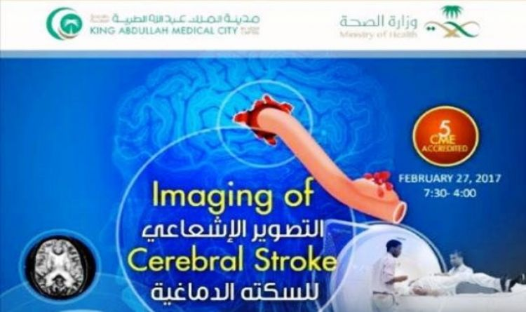 Imaging of Cerebral Stroke
